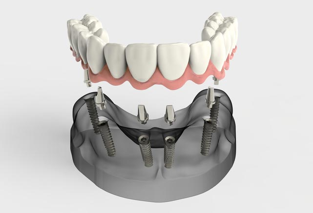 tooth implant success rate